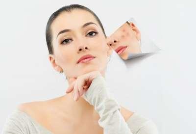 Invinge acneea bucurandu-te de minunile naturii